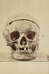 Schädel Ludwig van Beethovens bei der ersten Exhumierung. Fotografie 1863