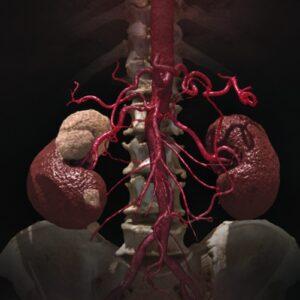 CT Nierentumor mit 3D Gefäßdarstellung der abdominellen Gefäße. Foto: Canon Medical