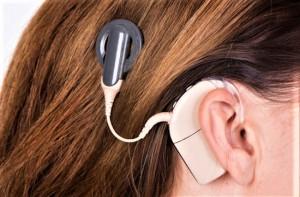 Das weltweit dünnste Cochlear-Implantat ist nun auch in Österreich verfügbar. Die neueste Generation hält selbst neurologischen MRT-Untersuchungen stand. Foto: Cochlear